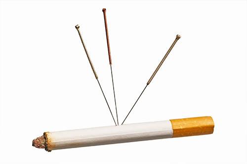 acupuncture arrêt tabac