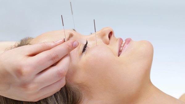lifitng par acupuncture